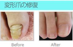 変形爪の修復